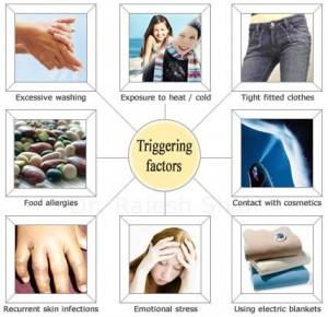 eczema-causes