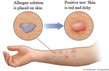skin patch test food allergies